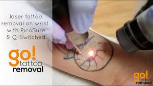 tattoo removal 1.jpg